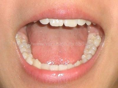 滑舌を良くする舌小帯短縮症の手術とは?